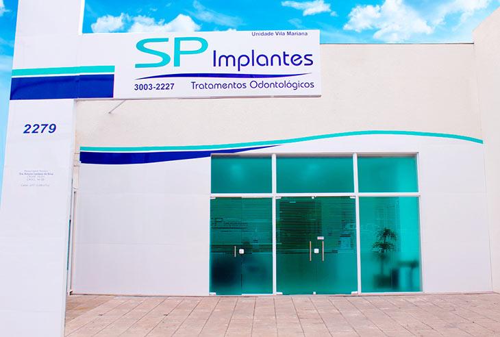 Como comprar uma Franquia SP Implantes
